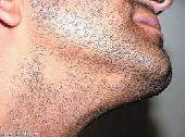 لانباات الشعر واللحيه والشننب  التساقط  الصلع