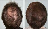 المنتج الامريكى للصلع الوراثى وتساقط الشعر