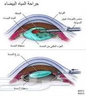 محتاجة عملية عيون