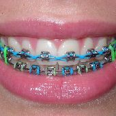 تقويم اسنان زينه