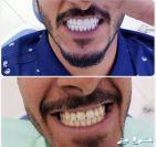 اقووى عرض على ابتسامة هوليود وزراعة الاسنان