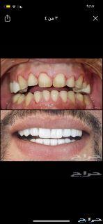 اقوى عرض على ابتسامة هوليوود ال3D