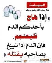 ادوات الحجامة النبوية في جدة
