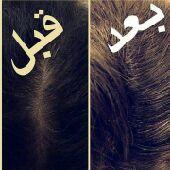 للتساقط وتكثيف الشعر زيت طبيعي بدون ضرر