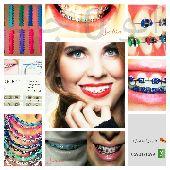 تقويم اسنان زينه جميع الألوان