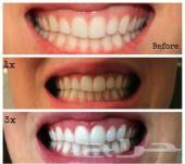 نتائج خلال اقل من اسبوع ..مسحوق تبييض الاسنان