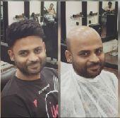 الحل الأسهل لصلع تركيب شعر طبيعي100