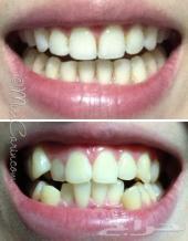 للبيع تقويم الأسنان زينة يتركب بالبيت 250 ريا