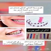 تقويم اسنان زينة