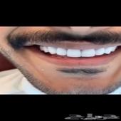 اقوى عروض الاسنان