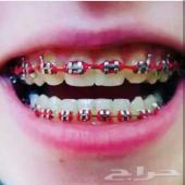 تقويم الأسنان يتركب بالبيت 250 ريال