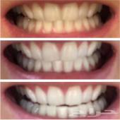 تبييض الاسنان نتائج ملحوظة خلال اسبوع .