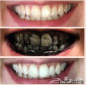 تبييض الاسنان في المنزل خلال اسبوع..شحن مجاني