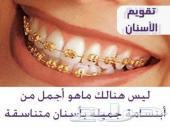 تقويم أسنان شد طبي ب 300 و زينة ب 150