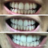 تبييض الاسنان خلال فترة وجيزة توصيل مجاني جدة