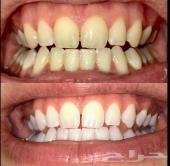 تبييض الاسنان خلال اسبوع واحد فقط.. جدة توصيل