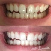 تبييض الاسنان نتيجة ملموسة خلال اسبوع واحد