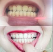 تبييض الاسنان خلال اسبوع فقط توصيل مجاني جدة