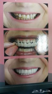مجمع الابتسامة الساحرة لطب وتقويم الاسنان