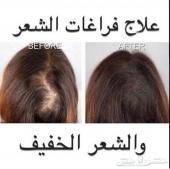 R الحل الأمثل لتساقط الشعر