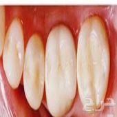 كلية الفارابي بجده لطب الاسنان
