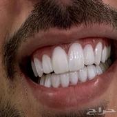 ابتسامة وزراعة الاسنان