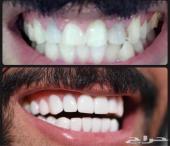 ثلاث كوبونات ابتسامة هوليود