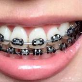 تقويم اسنان زينه وطبي بسعر مميز للفكين