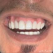 عرض ابتسامة هوليود