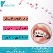 عرض مميز لتقويم الاسنان - مركز الفاران الطبي