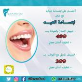 عرض تبييض الاسنان -مركز الفاران الطبي