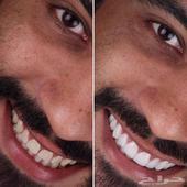 الرياض - ابتسامة هوليود